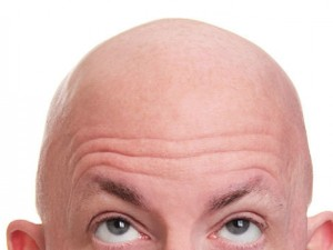 Find The Right Baldness Treatment In The Sydney CBD